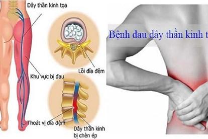 Thuốc nam chữa đau dây thần kinh hông